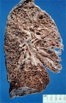lung with fibrosing